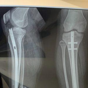 Röntgenaufnahme Beine